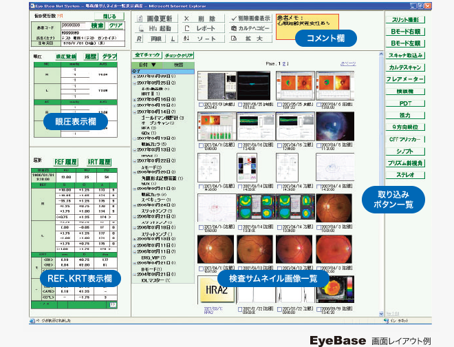 EyeBase画面レイアウト例